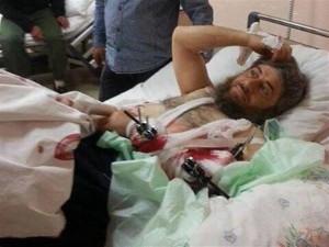 16 aprile 2014. Il comandante del DAESH Abu Muhammad,  ferito nei combattimenti a Idlib, viene curato all'ospedale statale di Hatay (fonte: Daily News).