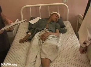 Ottobre 2006. Quattordicenne ferito dai bombardamenti NATO nel villaggio di Panjwaye. Fonte: RAWA.